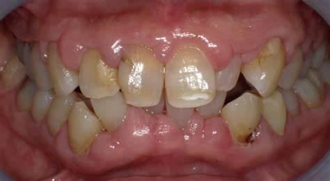 の に 歯茎 効く 薬 腫れ